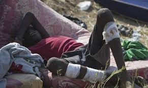 boy from South Sudan with injuries to legs